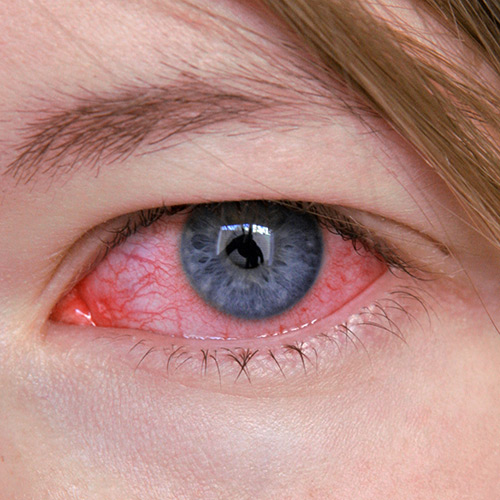 infected eye emergency